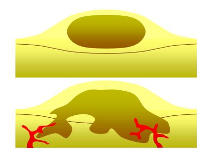 Daganat és fogyás: miért fontos a testsúly megtartása daganatos betegségekben?   vekettomotor.hu