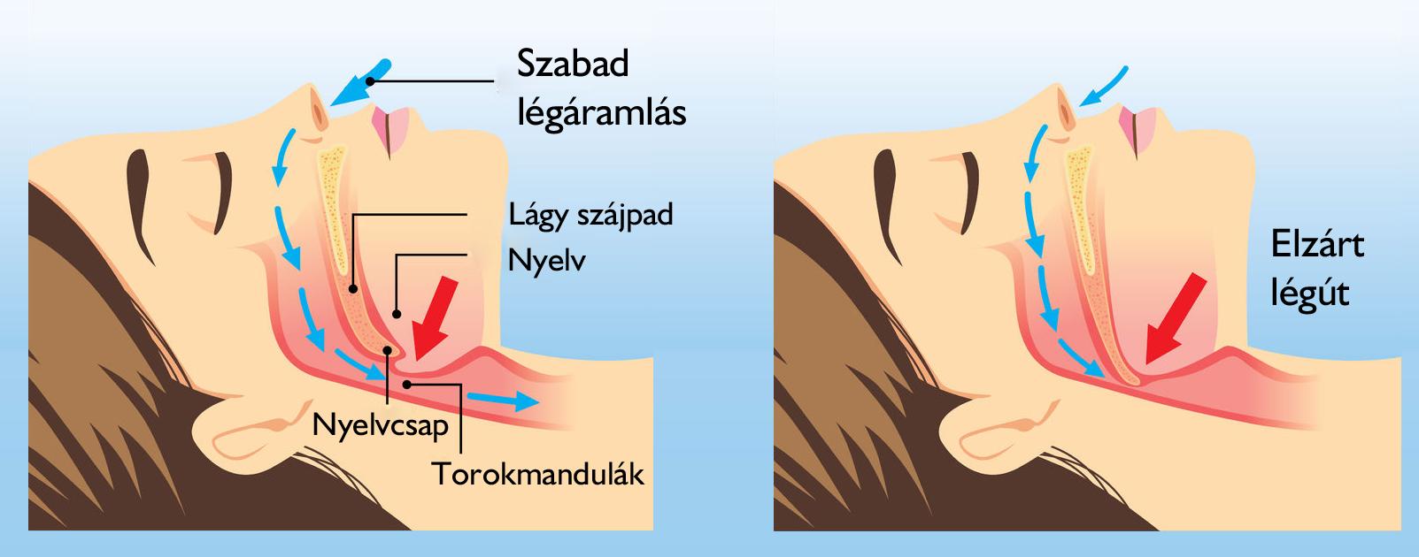 hogyan javítja a fogyás az alvási apnoét fogyhat az uniban