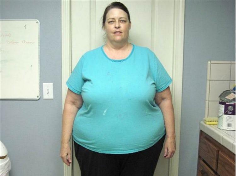 hogyan lehet gyorsan lefogyni 20 kilót égesse el a zsírt a lelkünkről