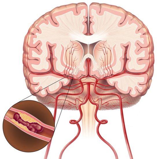 agyi letapogatás fogyás