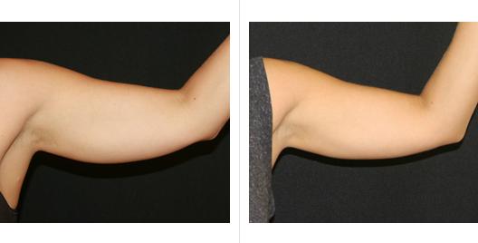 Izzadás és fogyás - Fogyókúra   Femina Hogyan lehet elveszíteni a belső zsírt