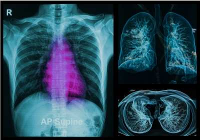 jóindulatú tüdődaganatok fogyást okozhatnak
