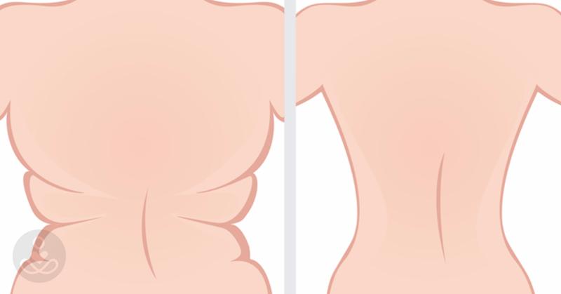 Hogyan lehet elveszíteni a felső csípő zsírt