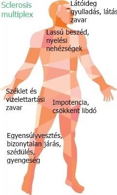 sclerosis multiplex tünetei fogyás