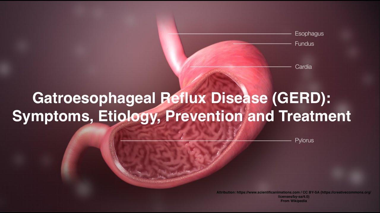 A reflux diéta alapelvei, Fogyás segít gerd
