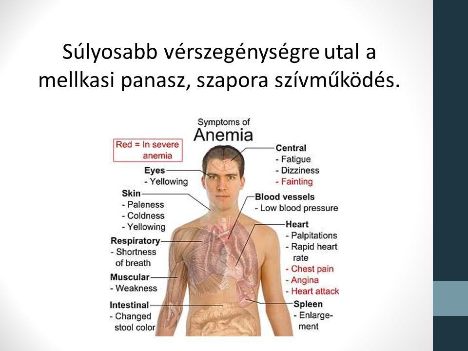 A vashiány és a vérszegénység 13 árulkodó jele   Diéta és Fitnesz