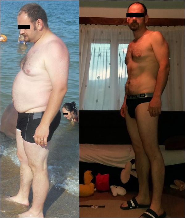 Az elhízás alattomos folyamat, de létezik kiút a fogságából