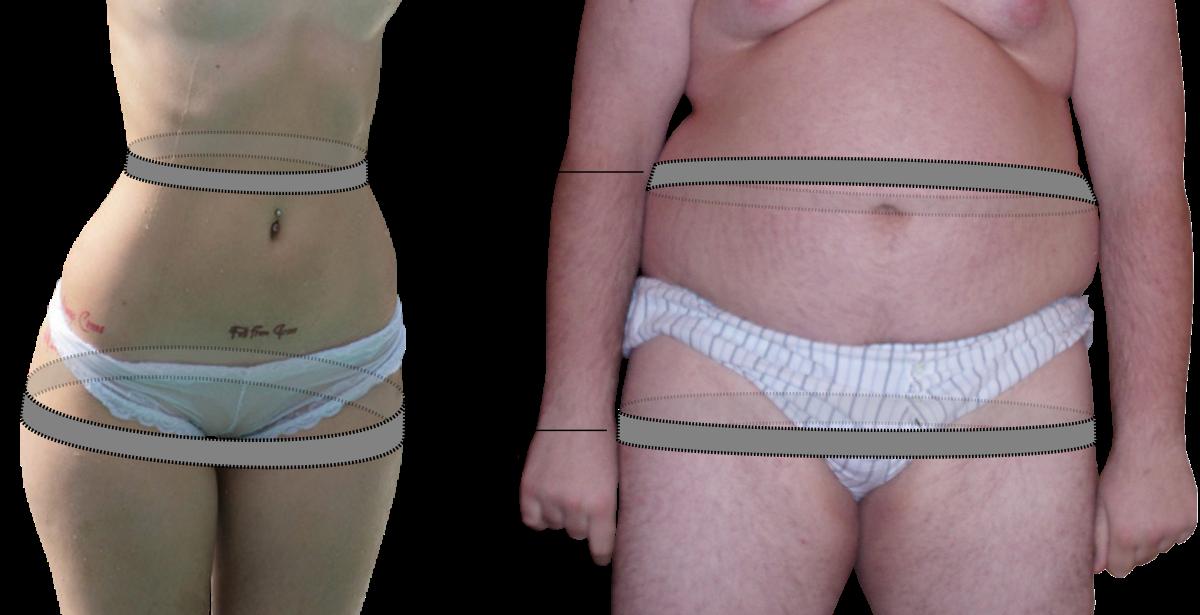 hogyan lehet karcsúsítani a derekát és a csípőjét tenisz zsírégetés