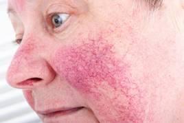 lupus kiütés fogyás