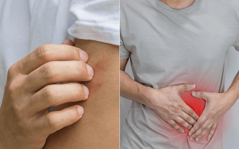 súlyos fogyást okozó betegségek