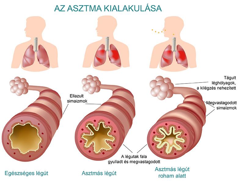 asztma fogyás után