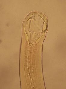 Viszketõ pinwormok