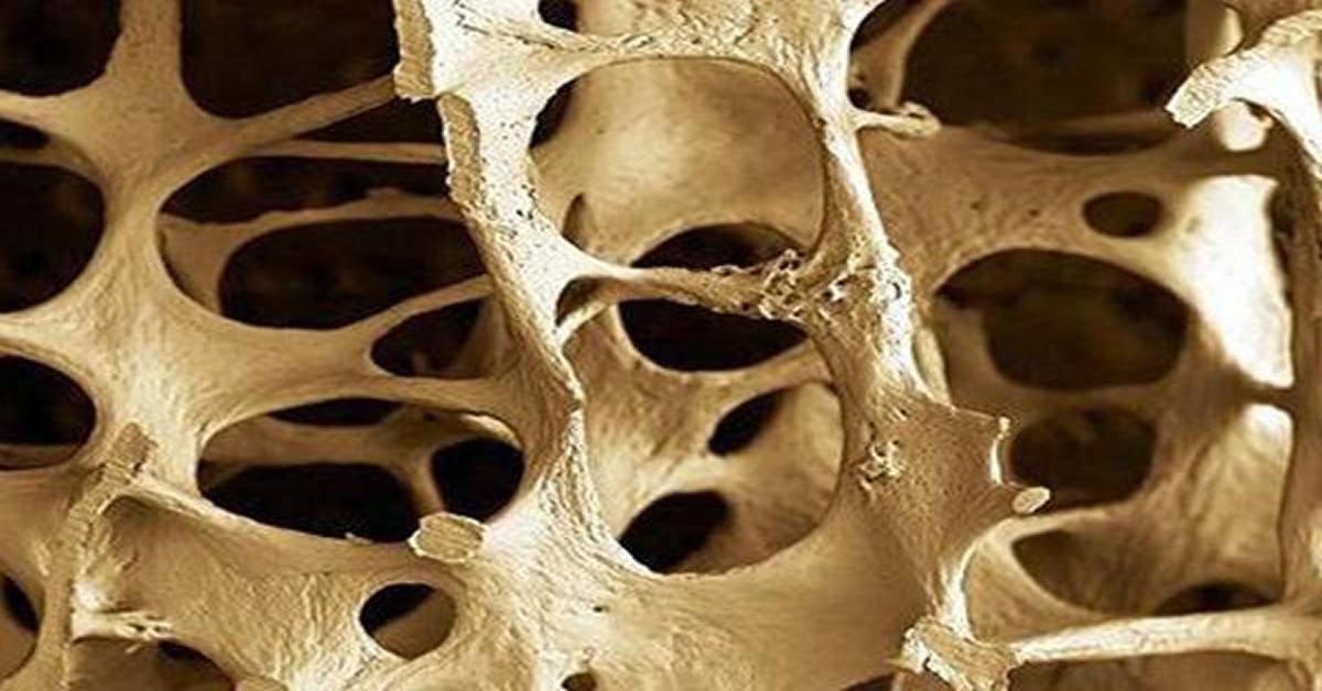 fogyni csontritkulás