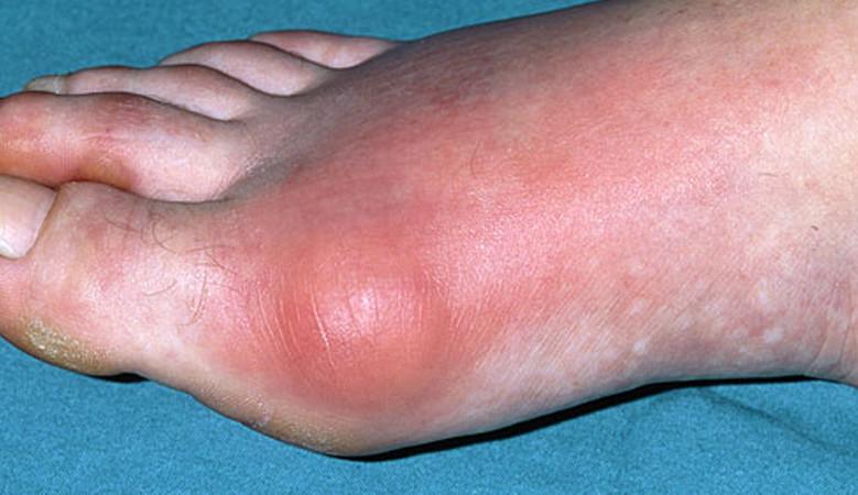 A köszvény tünetei és kezelése