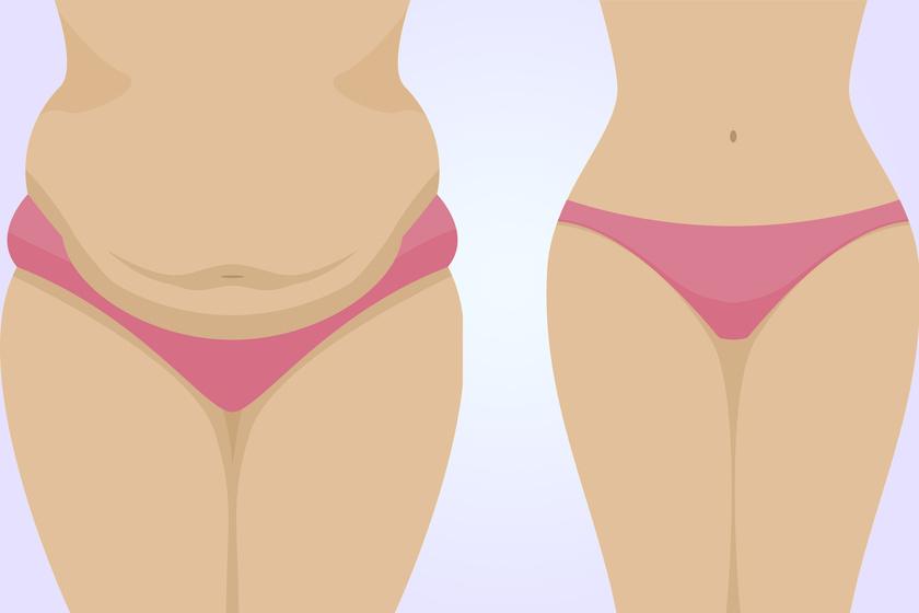 hogyan lehet eltávolítani a vastag hasi zsírt
