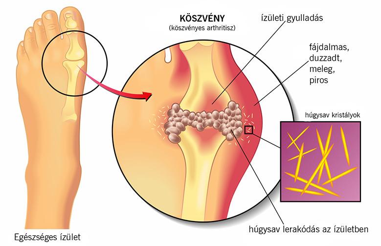 súlycsökkentő hatás a csípőízületi gyulladásra